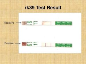 rK 39 test result for visceral leishmaniasis