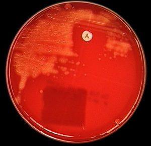 Bacitracin (A disk) test for identifying Streptococcus pyogenes