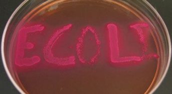 Bacterial Culture Media, their PH Indicators and color of bacterial colonies