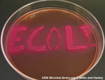 EMB Agar Selective or Differential http://microbeonline.com/bacterial-culture-media-their-ph-indicators-and-color-of-bacterial-colonies/