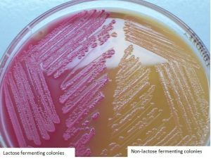 LF and NLF colonies in MacConkey Agar