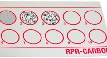 "Rapid Plasma Reagin (RPR) Test: Principle, Procedure and Interpretations<span class=""rating-result after_title mr-filter rating-result-1085"" >	<span class=""mr-star-rating"">			    <i class=""fa fa-star mr-star-full""></i>	    	    <i class=""fa fa-star mr-star-full""></i>	    	    <i class=""fa fa-star mr-star-full""></i>	    	    <i class=""fa fa-star mr-star-full""></i>	    	    <i class=""fa fa-star-half-o mr-star-half""></i>	    </span><span class=""star-result"">	4.63/5</span>			<span class=""count"">				(8)			</span>			</span>"