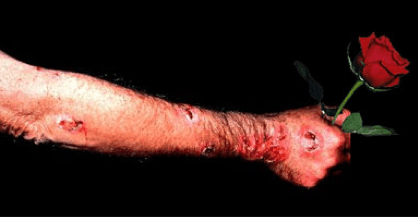 overview of sporotrichosis rose gardener s disease and laboratory diagnosis microbeonline