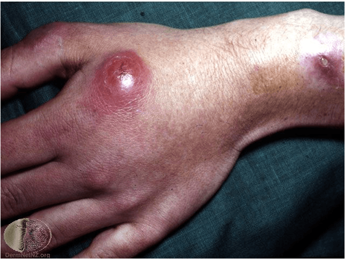 Atypical Mycobacterial Infections Microbeonline