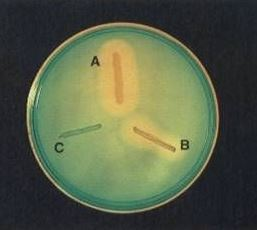 DNase Test; DNA Hydrolysis Test