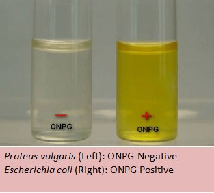 ONPG Test (for β-galactosidase): Principle, procedure and results ...