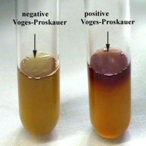 Results of Voges-Proskauer (VP) Test