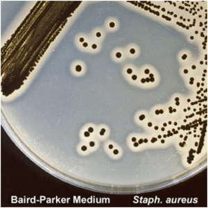 Baird Parker Agar- principle, preparation and uses