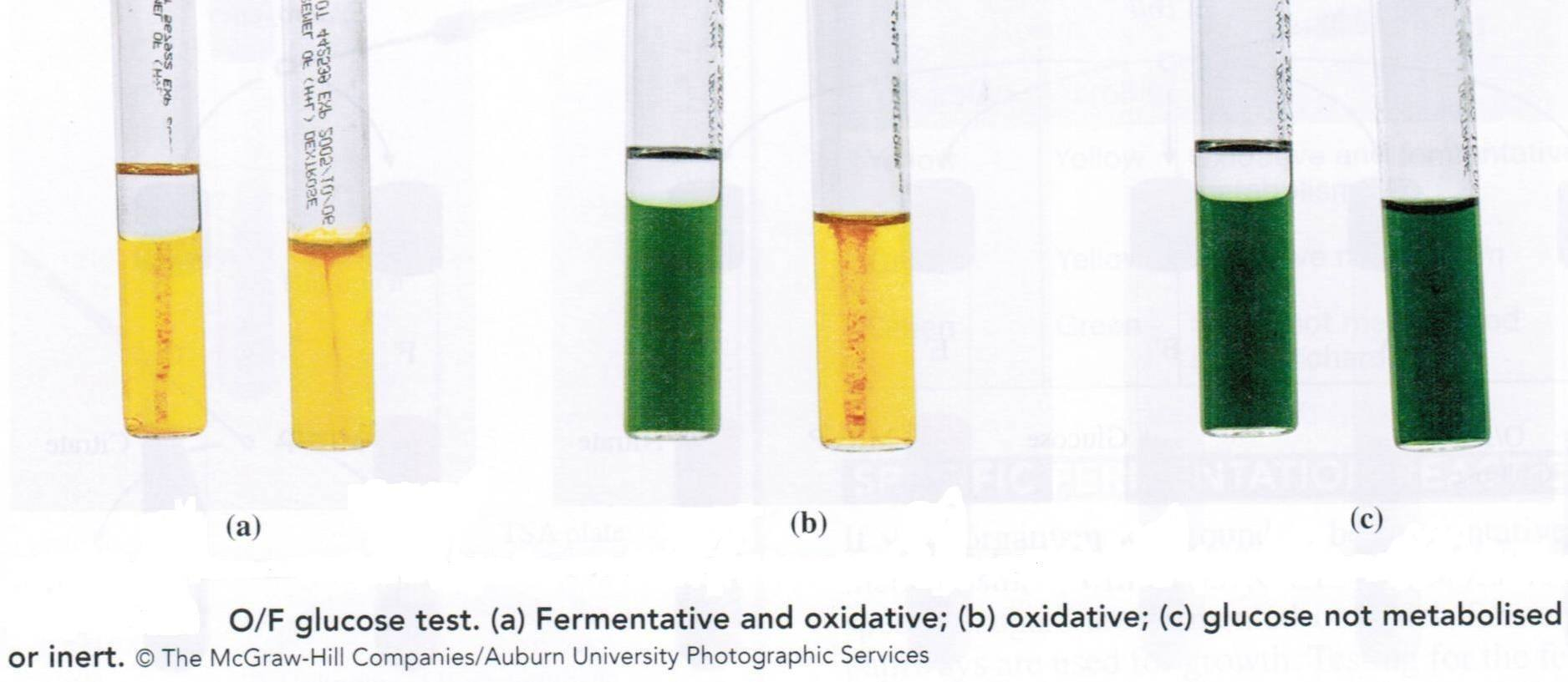 Oxidative fermentative (OF) test:  Principle, procedure and results