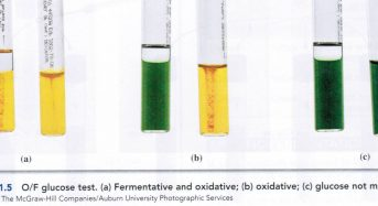 "Oxidative fermentative (OF) test:  Principle, procedure and results<span class=""rating-result after_title mr-filter rating-result-3150"" >	<span class=""mr-star-rating"">			    <i class=""fa fa-star mr-star-full""></i>	    	    <i class=""fa fa-star mr-star-full""></i>	    	    <i class=""fa fa-star mr-star-full""></i>	    	    <i class=""fa fa-star mr-star-full""></i>	    	    <i class=""fa fa-star mr-star-full""></i>	    </span><span class=""star-result"">	4.82/5</span>			<span class=""count"">				(11)			</span>			</span>"