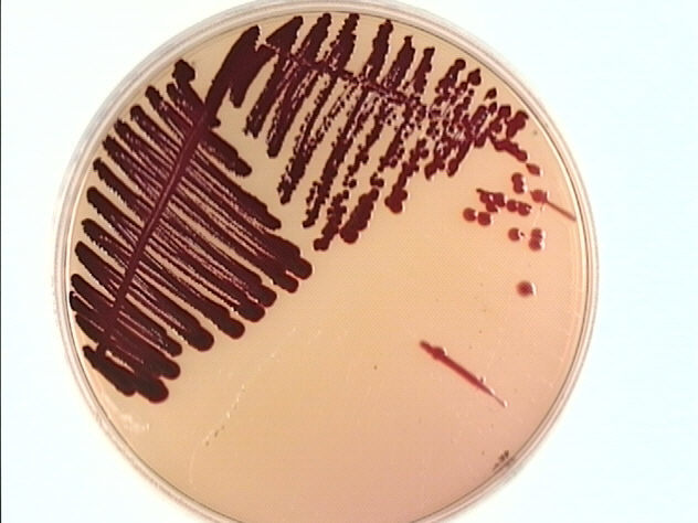 Serratia marcescens bathroom
