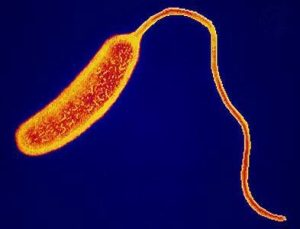Bacterium Vibrio Cholerae which causes cholera