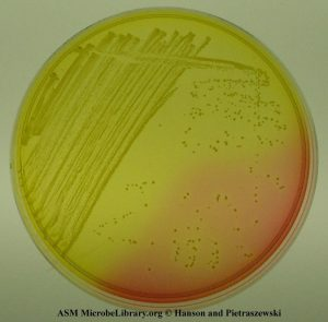 Yellow colonies of S. aureus in Mannitol Salt Agar (Photo by Anne Hanson and Matthew Pietraszewski, University of Maine