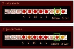 Dnase Test: M. catarrhalis (+ve) and N.gonorrhoeae (-ve)