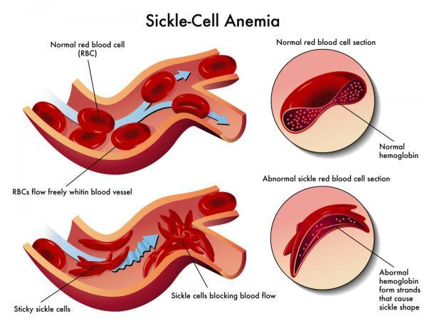 relationship between sickle cell anemia and malaria microbeonline sickle cell anemia