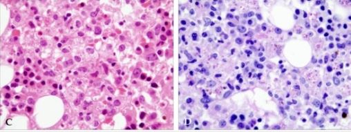 Histoplasma capsulatum in bone marrow biopsy C.