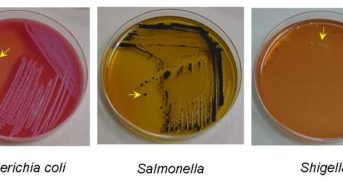 "Salmonella-Shigella (SS) Agar:  Composition, Principle, Procedure and Results<span class=""rating-result after_title mr-filter rating-result-4108"" >	<span class=""mr-star-rating"">			    <i class=""fa fa-star mr-star-full""></i>	    	    <i class=""fa fa-star mr-star-full""></i>	    	    <i class=""fa fa-star mr-star-full""></i>	    	    <i class=""fa fa-star mr-star-full""></i>	    	    <i class=""fa fa-star-half-o mr-star-half""></i>	    </span><span class=""star-result"">	4.67/5</span>			<span class=""count"">				(12)			</span>			</span>"
