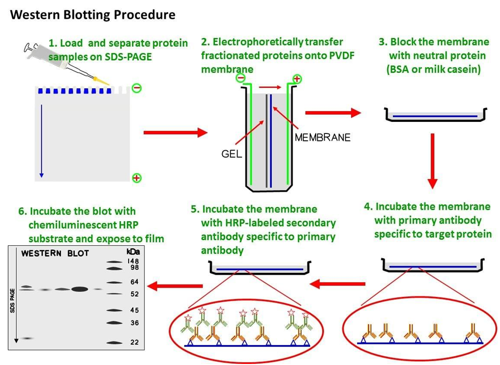 western blotting technique laboratory analysis A western blot is a laboratory analysis technique that's used to isolate proteins the main reasons for using a western blot test.