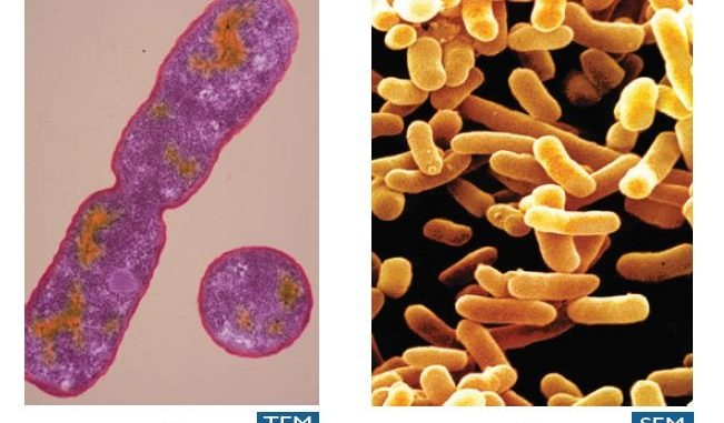 Difference between Scanning Electron Microscopy (SEM) and Transmission Electron Microscopy (TEM)